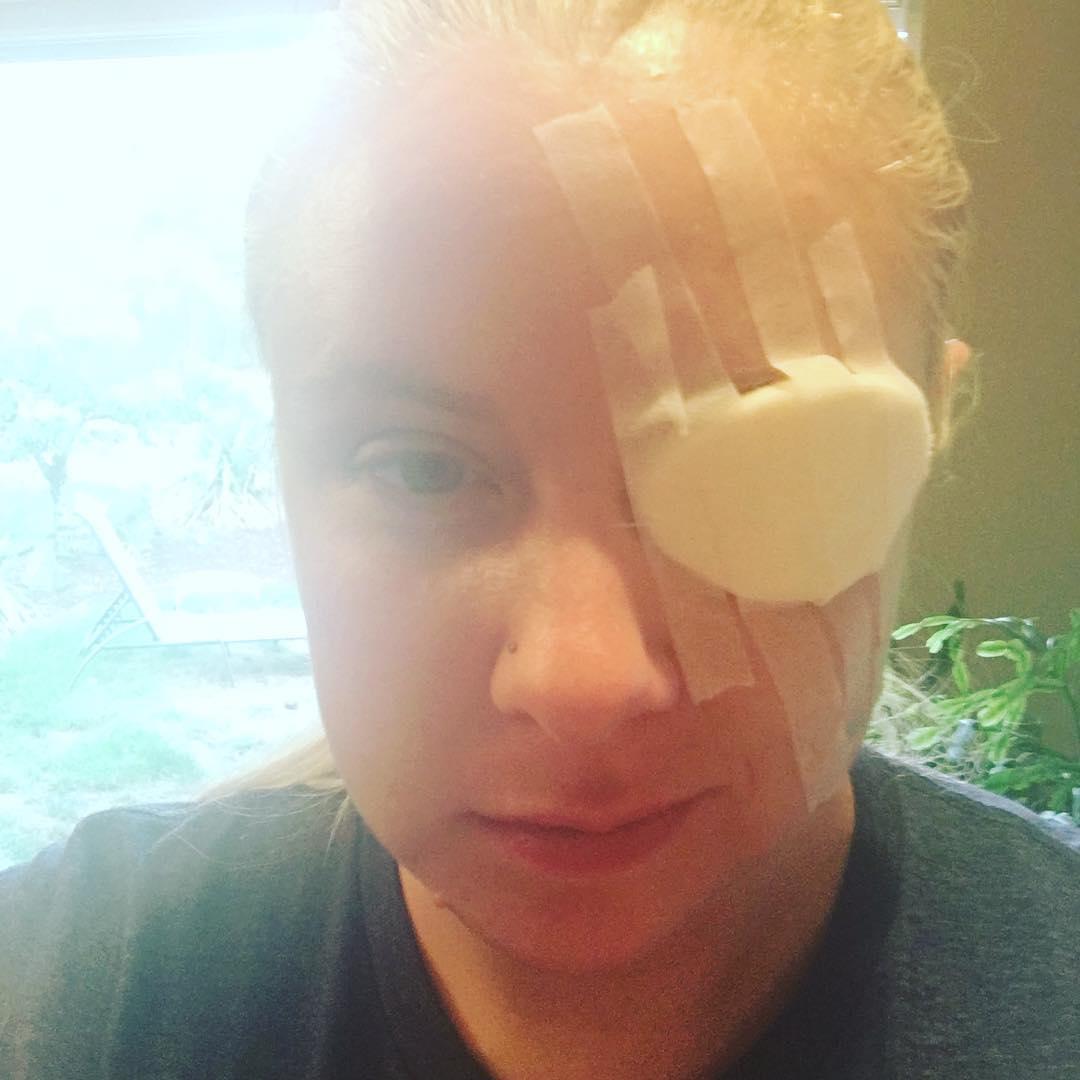 Scratched cornea? Get a free iPad!